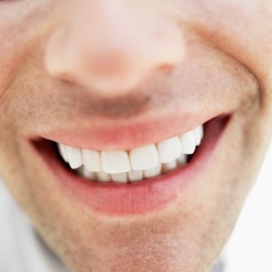Teeth Whitening in Irvine CA