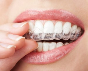 Braces in Highland Park CA