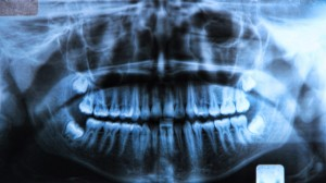 Wisdom Teeth in Oxnard CA