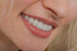 Care for Porcelain Veneers