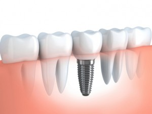 Comparing Bridges and Dental Implants