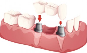Dental Implants May Benefit Diabetic Patients