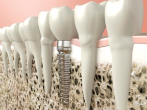 Keys to Dental Implant Success