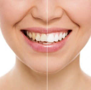 How Long Does Professional Teeth Whitening Last?