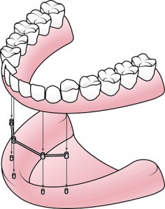 All About All-on-4 Dental Implants