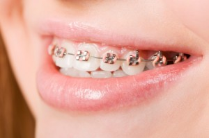 When, Why, and How to Correct an Overbite