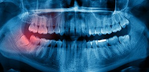 Impacted Wisdom Teeth and What to Do About Them