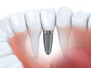 Could Stem Cell Technology Replace Dental Implants?