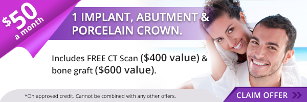 $50 a month Implants