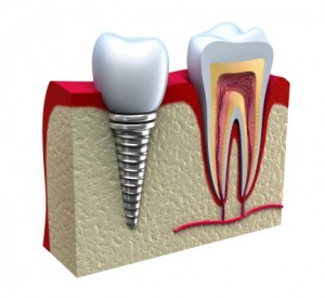 Comparing Different Types of Dental Implants