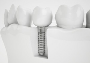 Are Dental Implants in Your Future? Start Planning Now to Pay for Them
