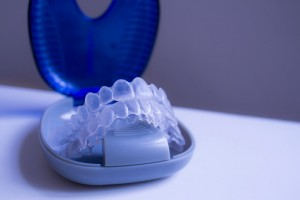 Start Planning for Your Teen's Invisalign Treatment Today