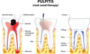 What You Need to Know Before a Root Canal