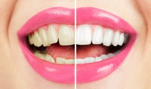 Why Do Teeth Turn Yellow?