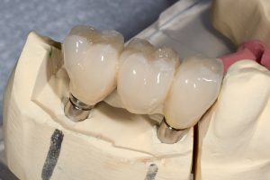 Getting Dental Bridges