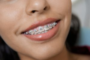 3 Reasons Summer is the Best Season for Teens to Get Braces
