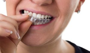 Comparing Traditional Braces and Invisalign