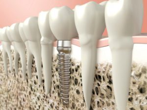 Do's and Don'ts for Dental Implants