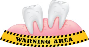 Do You Need to Get Screened for Periodontal Disease?