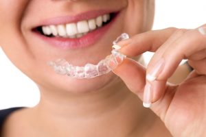 Important Dos and Don'ts for Invisalign