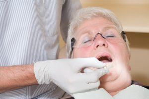 Top Options for Seniors Who Are Missing Teeth
