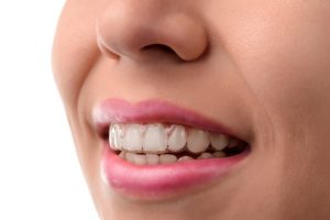 Five Questions to Ask Your Dentist Before Deciding on Invisalign
