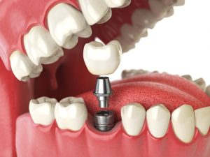 How to Select the Best California Dentist for Your Dental Implant Procedure