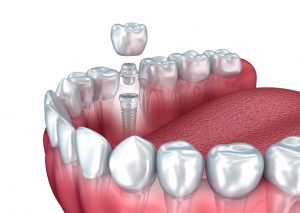 Keep Your Jaw Strong and Prevent Bone Loss with Dental Implants