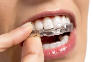 Do You Know What Your Orthodontic Options Are?