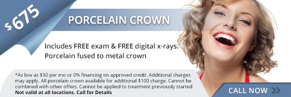 $675 Same Day Crowns