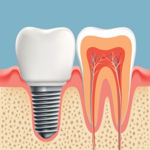 Dental Implants 101: Everything You Need to Know About the Process