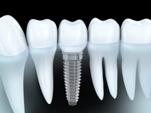 People Lose Their Teeth and Turn to Dental Implants for Many Reasons