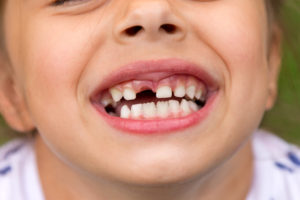 Do You Know What to Do if Your Child Has a Tooth Knocked Out?