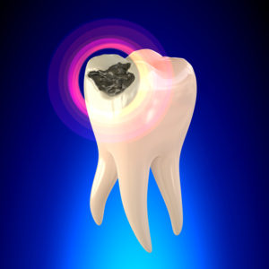 What Exactly is a Cavity and How Can I Prevent Them?