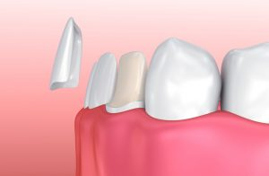 Porcelain Veneers: What Are They and Are You a Good Candidate