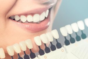 Can I Whiten My Teeth Even if I Have Oral Health Problems?