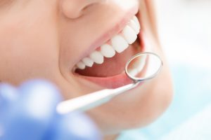 What to Expect if You Haven't Been the Dentist in Many Years
