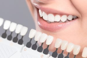 Are You Interested in Teeth Whitening? Learn About the Two Main Options