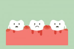How to Determine if You May Have Gum Disease
