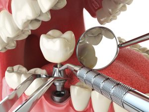 What to Expect if You Choose Dental Implants: Services You'll Get