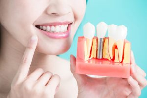 4 Reasons Dental Implants May Be Worth the Cost for You