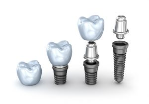 Are Dental Implants a Realistic Treatment for Gum Disease?