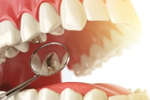 Common Signs That You Have At Least One Cavity