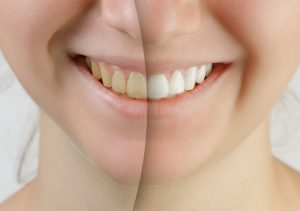 Treat Yourself in the New Year: 4 Cosmetic Options to Improve Your Teeth