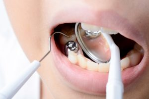 Do You Have a Cavity? 5 Signs to Watch Out For