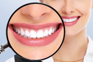 Don't Get Your Teeth Whitened Without Reading This