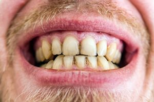 Tired of Yellow Teeth? Learn What Causes Teeth Yellowing and How to Fight It