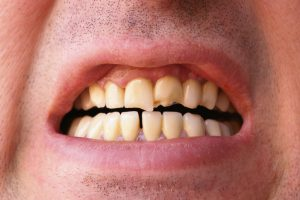 Do You Have a Cracked Tooth? Try These Pain Relief Methods