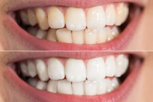 4 Reasons Your Teeth May Have Shifted