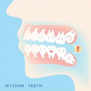 Should You Have Your Wisdom Teeth Removed? Learn the 4 Reasons That It May Be a Good Idea